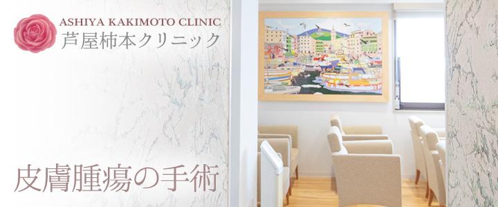 芦屋柿本クリニック 皮膚腫瘍の手術