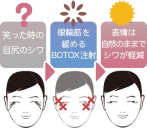 目尻ライトBOTOX(ボトックス)
