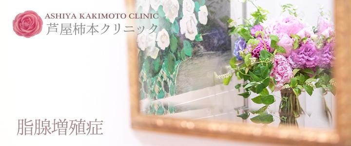芦屋柿本クリニック 脂腺増殖症