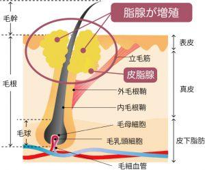 脂腺増殖症の説明